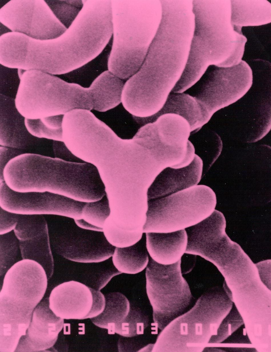 Bacteria and the large intestine